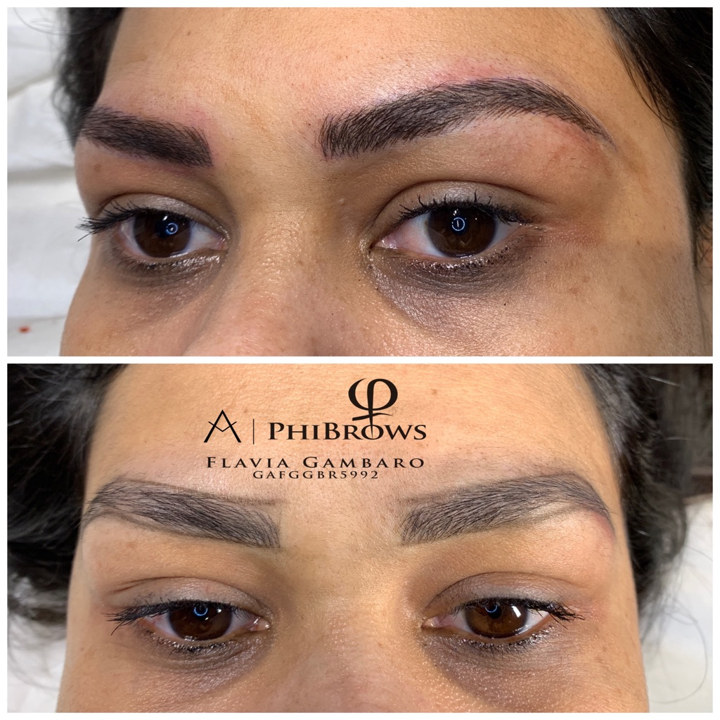 Microblading by PhiBrows and Laser Removal