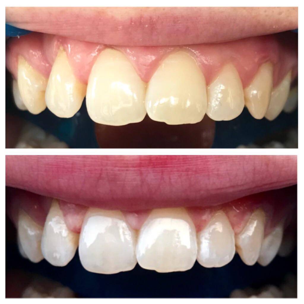 Non Peroxide Teeth Whitening