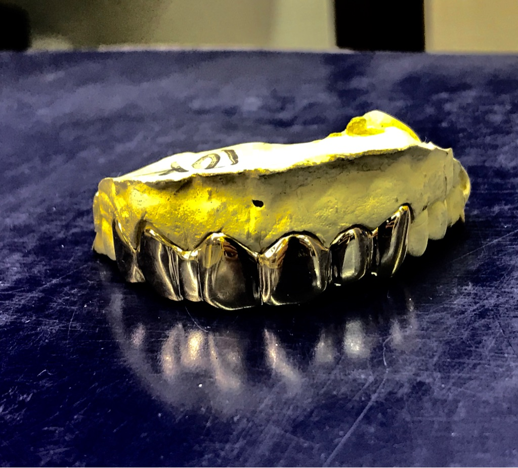 Custom Gold Grillz 10k 14k 18k