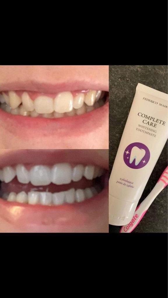 Whiter teeth for summer?