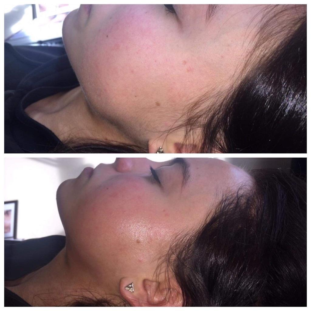 Dermaplanning Facial