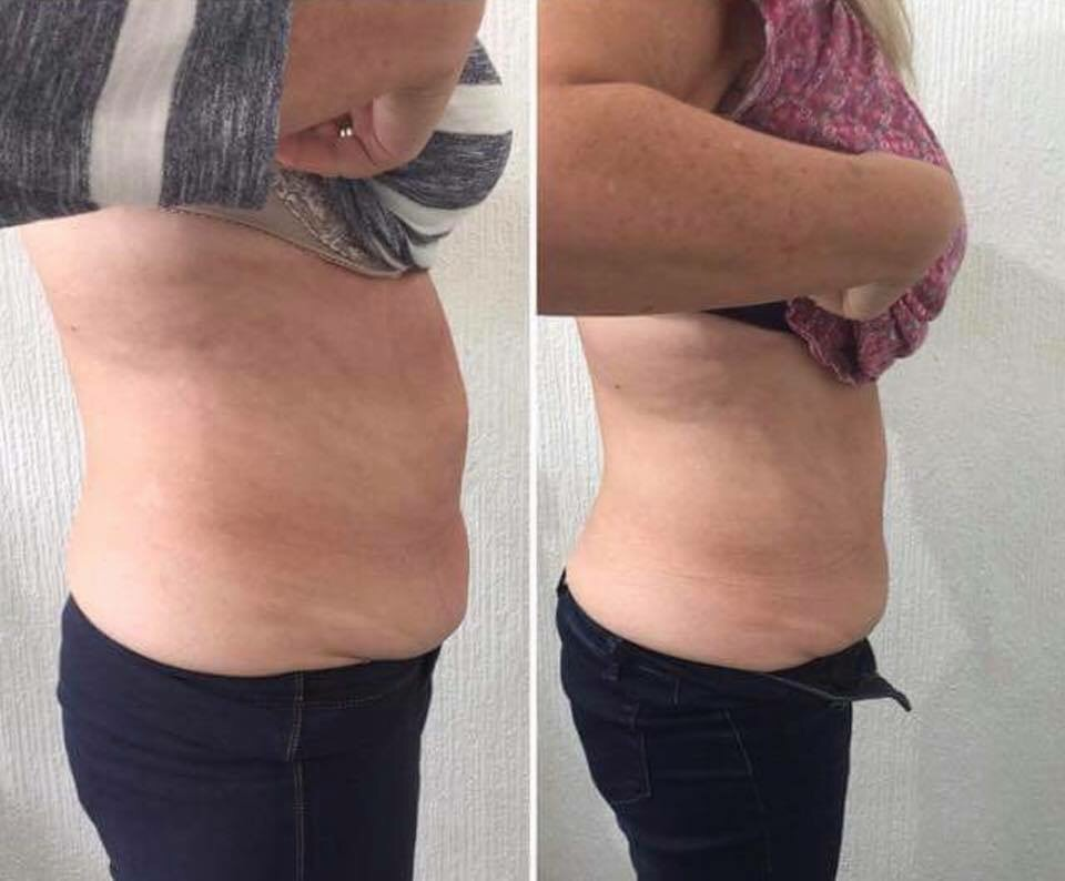 Skin tightening/ fat removal