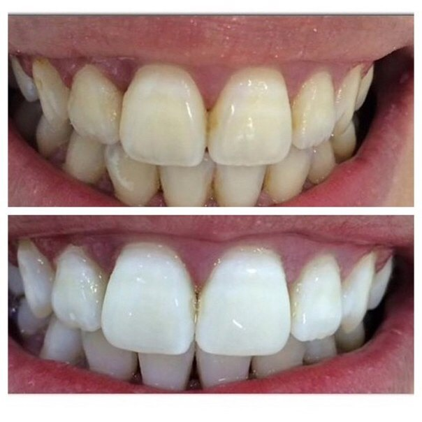 10x Crest 3D Luxe Teeth Whiteing Strips