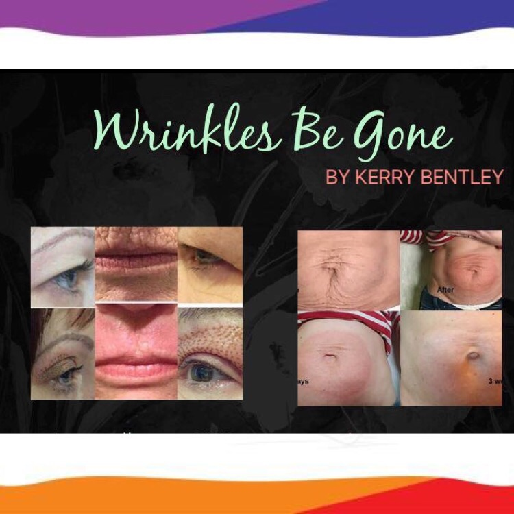 Fibroblast skin lift, tightening and wrinkle reduction