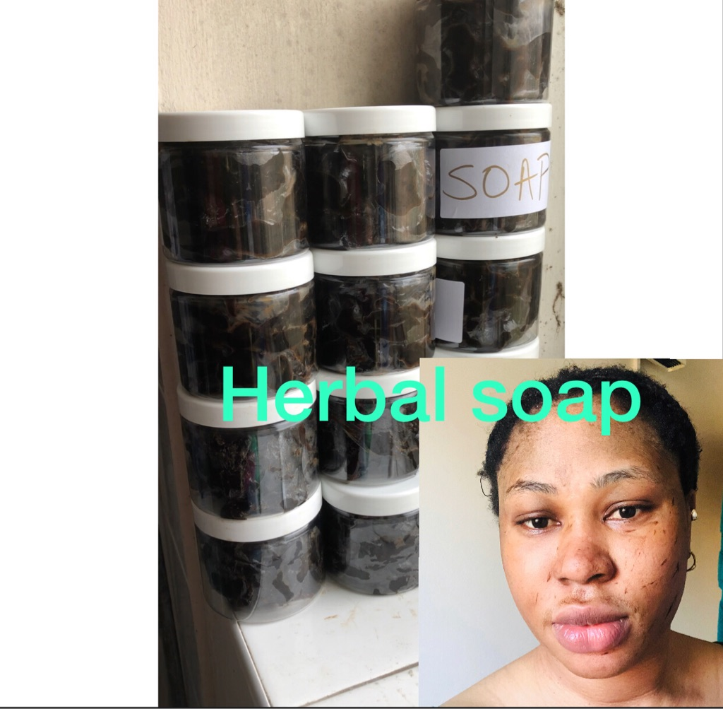Sharon skincare products call us on whatsapp 07380163211