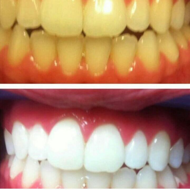 Teeth Whitening Special !!!