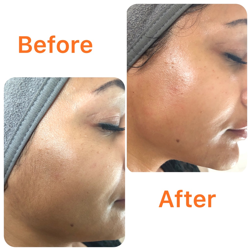 Dermaplaning -Full Face Treatment