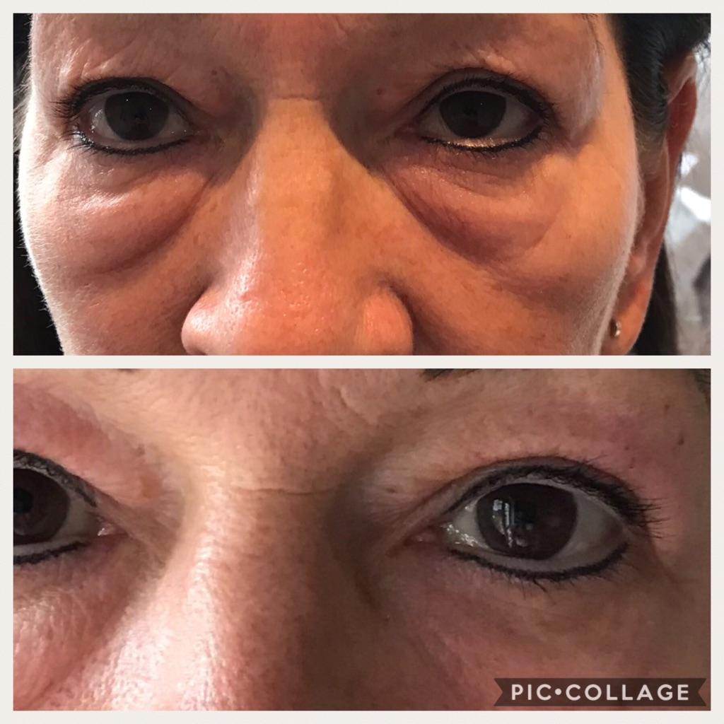 Skin rejuvenation / Fibroblast