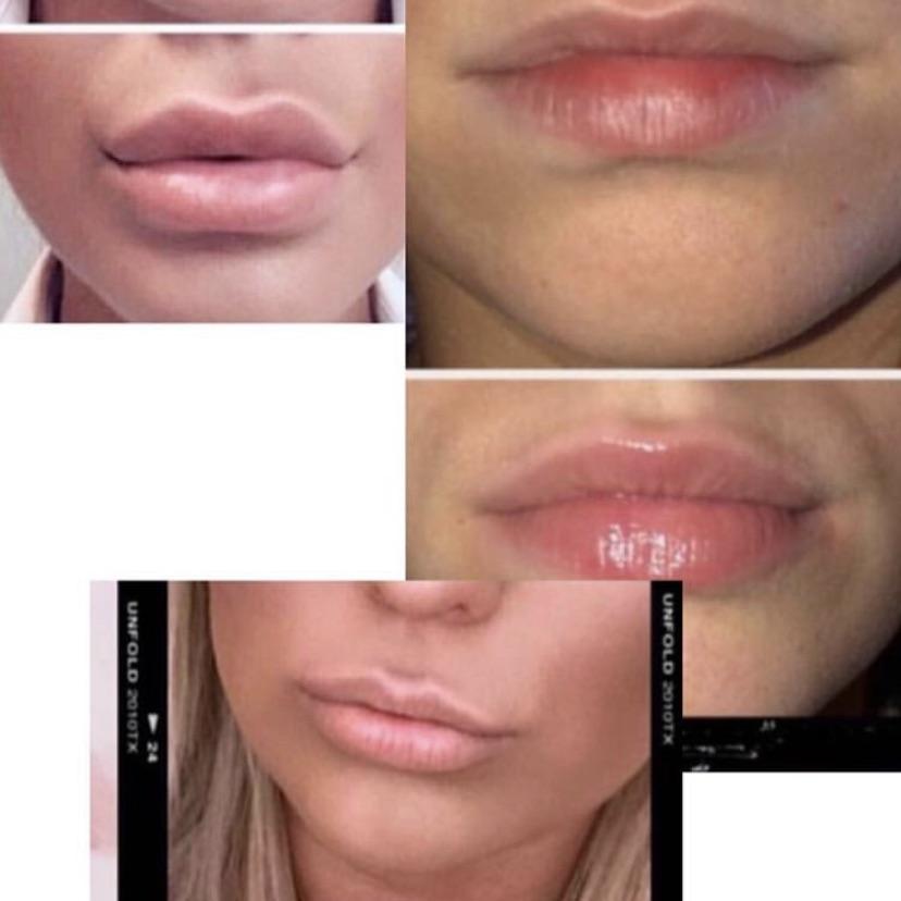 Lip plump balm
