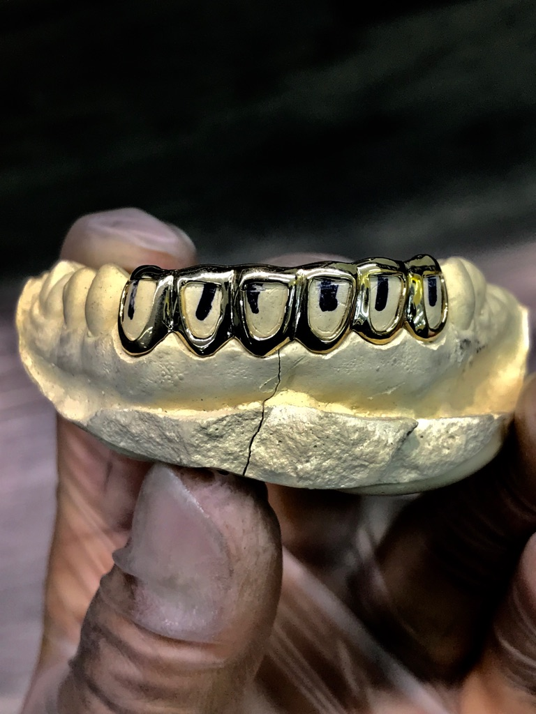 Custom Gold Grillz 10k 14k 18k and silver