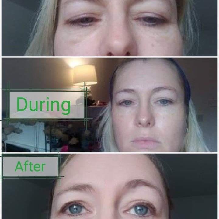 Acti labs eye contour gel